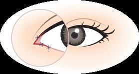 ทำตาสองชั้นเปิดหัวตา-03