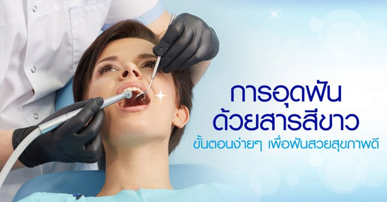 การอุดฟันด้วยสารสีขาว