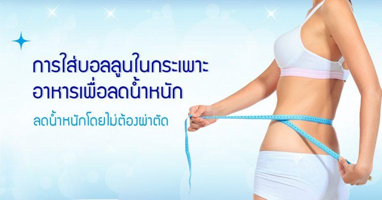 การใส่บอลลูนในกระเพาะอาหารเพื่อลดน้ำหนัก