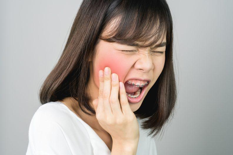 จัดฟันแฟชั่น-04
