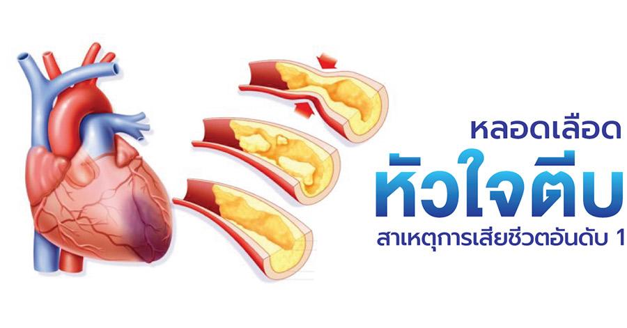 การตรวจคัดกรองโรคหัวใจ